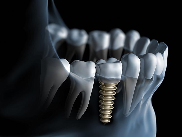 dental implant dentist near me