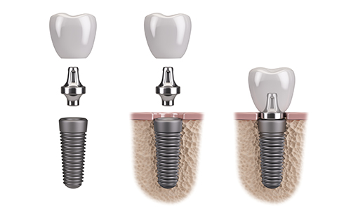 dental implants office claremont ca