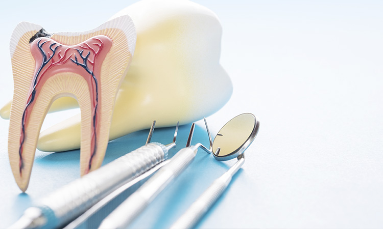 root canal dentist, clarement, ca